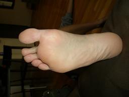 Ball arch heel