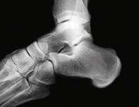 Small ankle xray