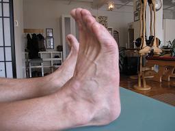 Flexed Foot